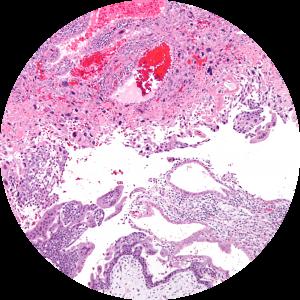 Malignant Trophoblastic DiseasePage: Gestational Trophoblastic Tumours (GTT)